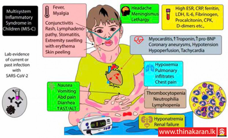 Multi-System Inflammatory Syndrome in Children (MIS-C)